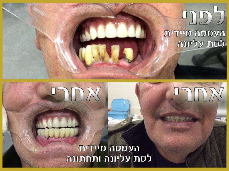 העמסה מיידית לפני ואחרי - תמונה להמחשה